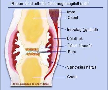 ízületi fájdalom hormonok szedésekor