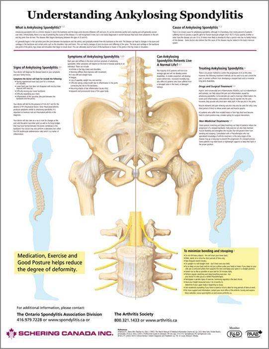 fájdalom a bal csípőízületben férfiaknál artrózis kezelése térdgyulladással