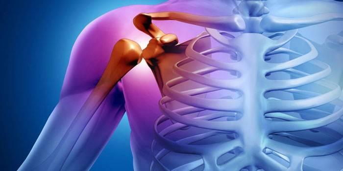 fájdalom a kézízületben edzés közben gyógyszer ízületi fájdalom kéz a kezét