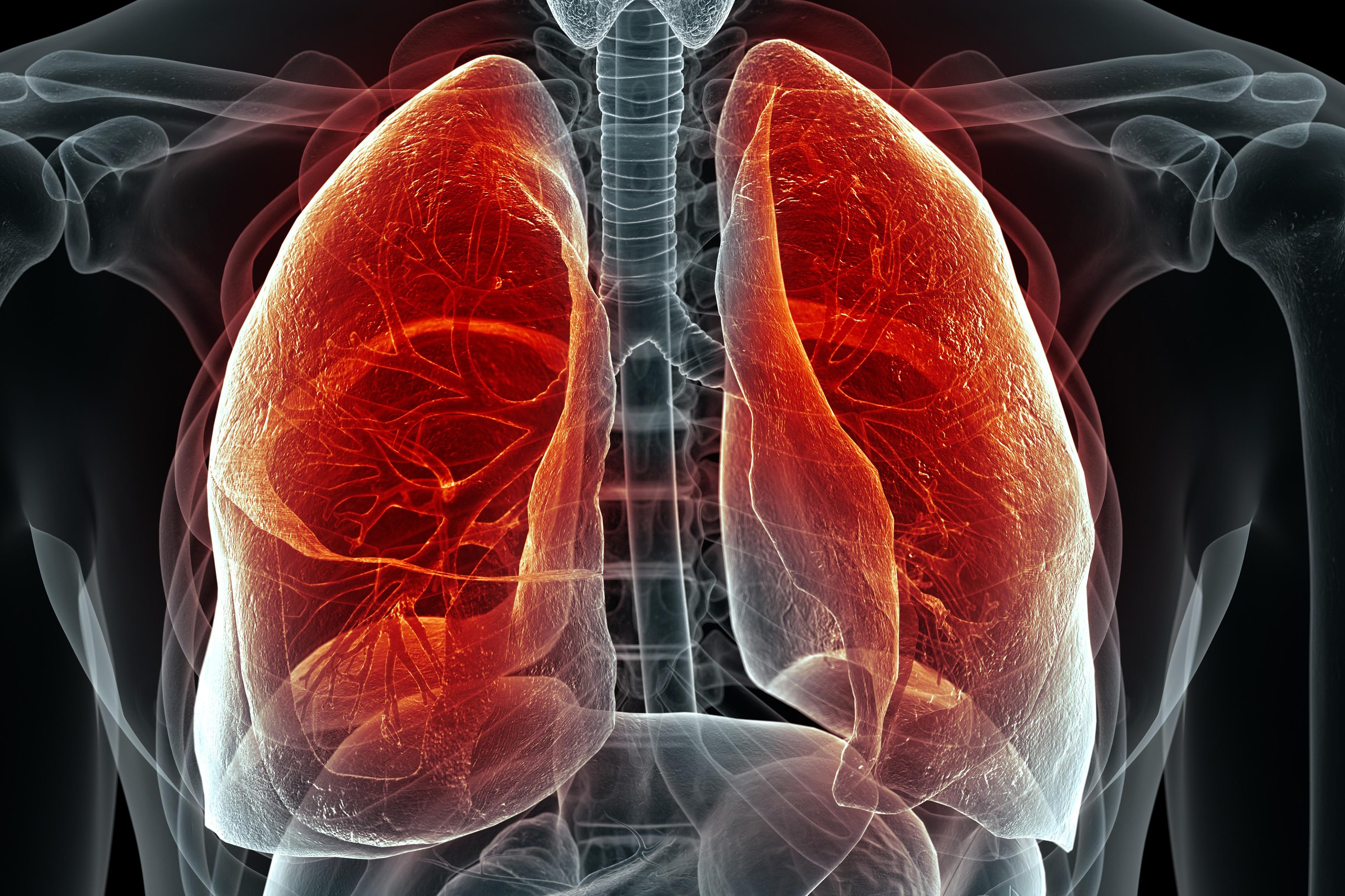 tüdőgyulladás ellen házilag)