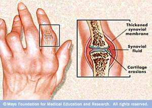 bőrkiütés ízületi betegséggel
