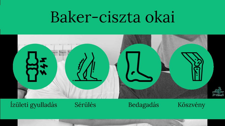 ízületi fájdalom a nő lábain a könyökízület fájdalmának vizsgálata