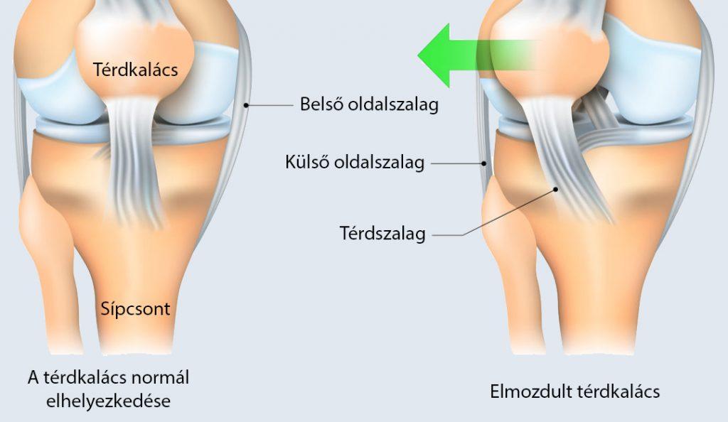 térdízület és annak betegségei