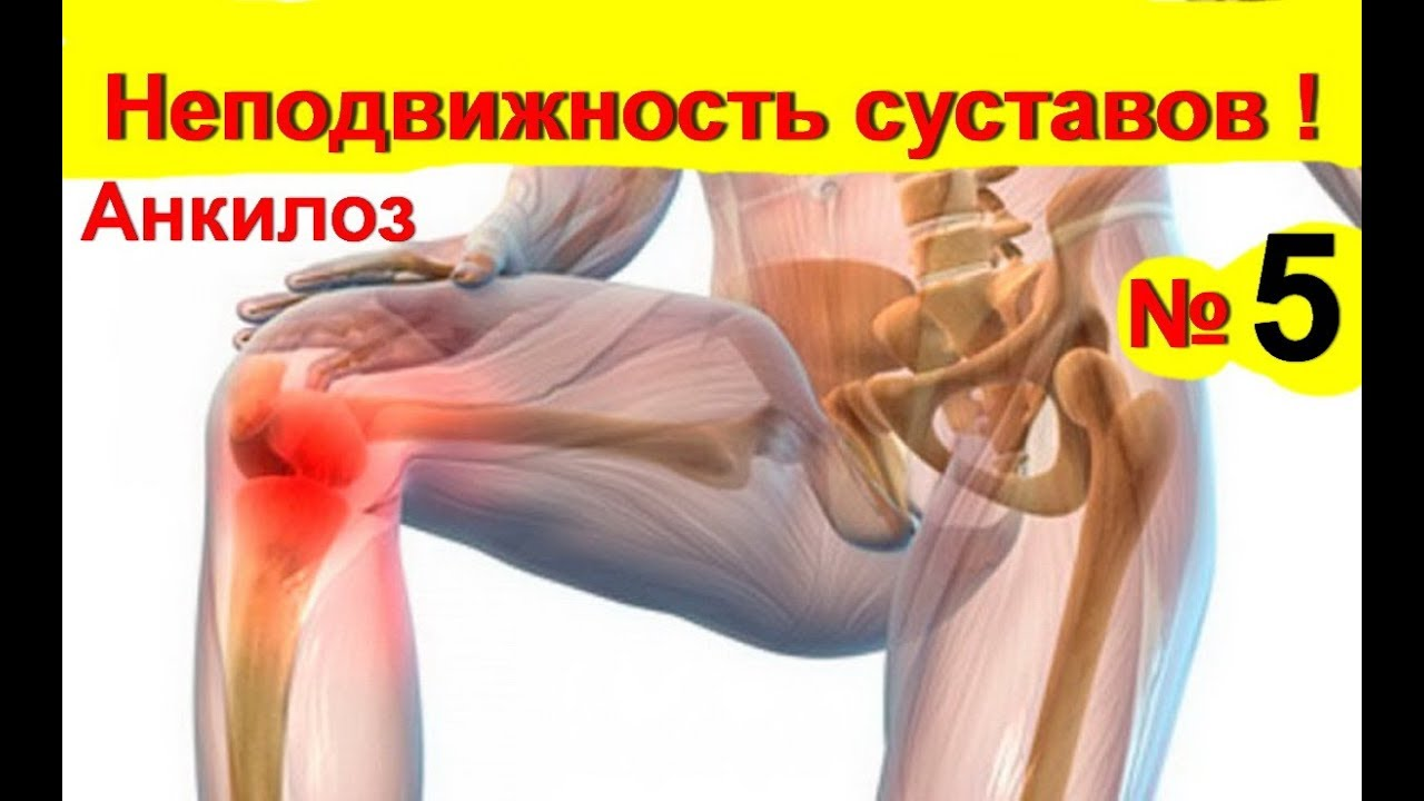 a csípőízület artrózisának kezelése injekciókkal ízületi gyulladás kezelése osteoarthritis esetén
