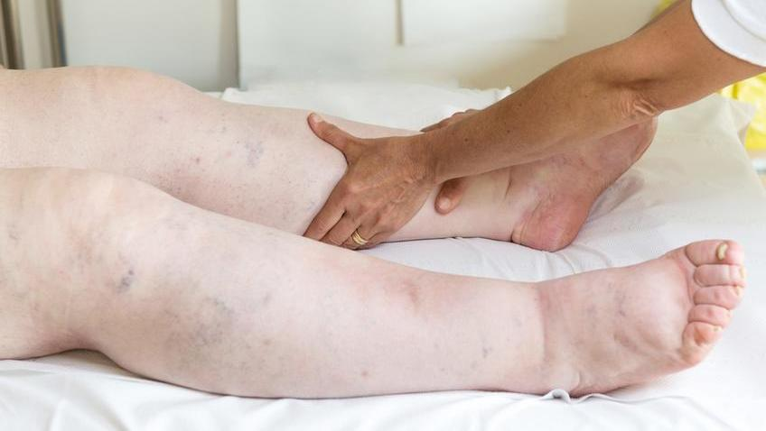 milyen kezelést alkalmaznak a duzzadt lábak esetén)