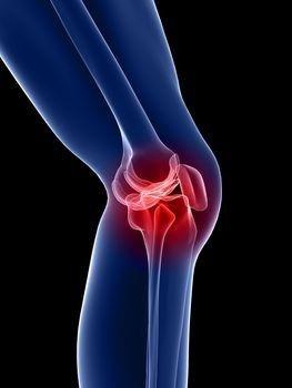 mágneses kezelés térd artrózisához vándorló fájdalom a lábak és a karok ízületeiben