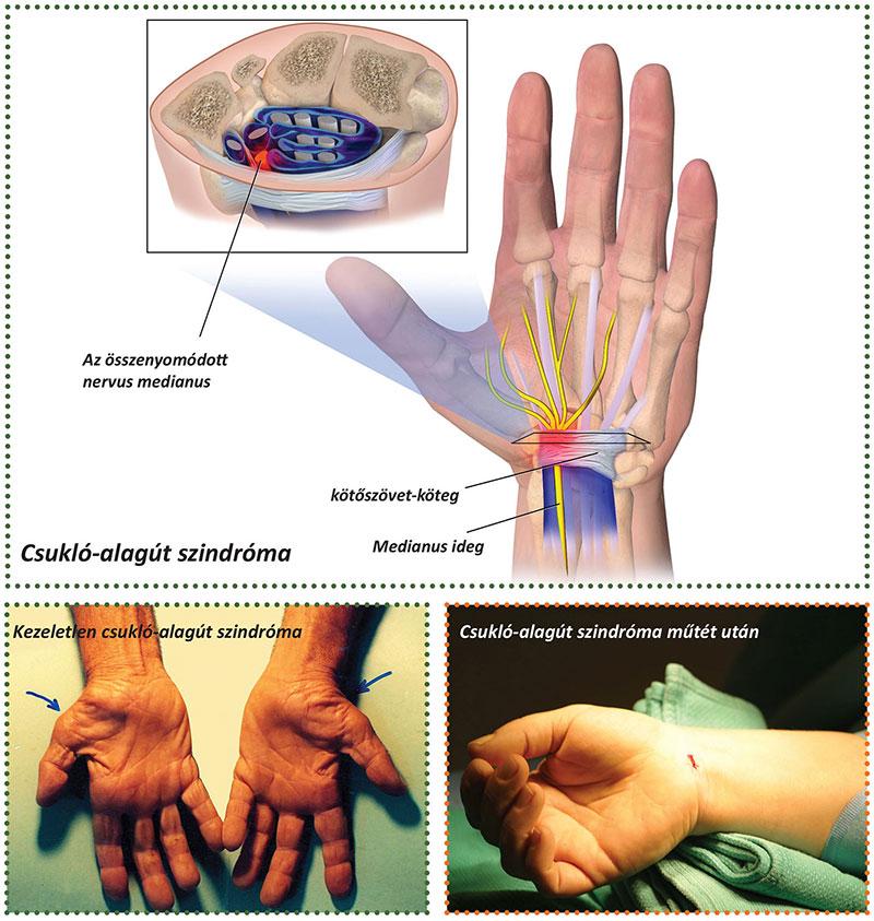 ízületi gyulladásos eljárások)