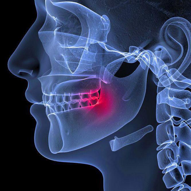 kortikoszteroid gyógyszerek osteochondrozissal szemben