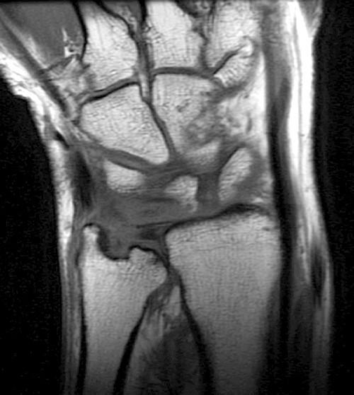 rheumatoid arthritis radiology mri váll fájás okai