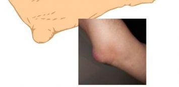 Ganglion (csuklón és kézen előforduló gömbszerű duzzanat) előfordulása és kezelése gyermekkorban