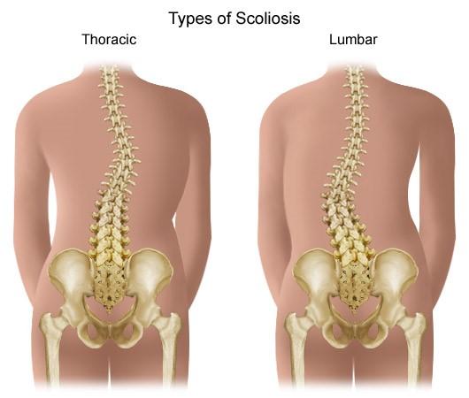 fáj a hát és a csípőízület