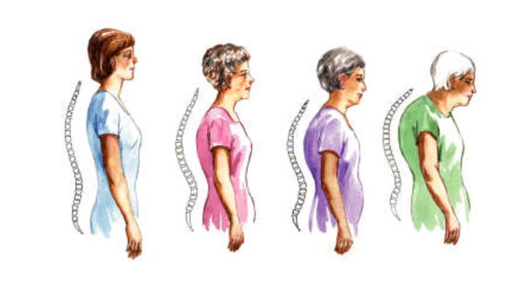csont- és ízületi betegségek csontritkulás miért fáj a térdízületek a kezelés