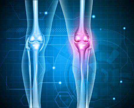 vitamin komplex a térd artrózisához)