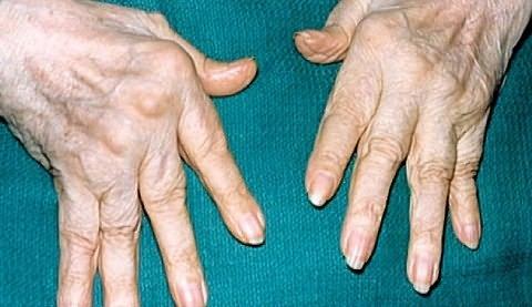 miért tartanak az ujjak ízületei reggel