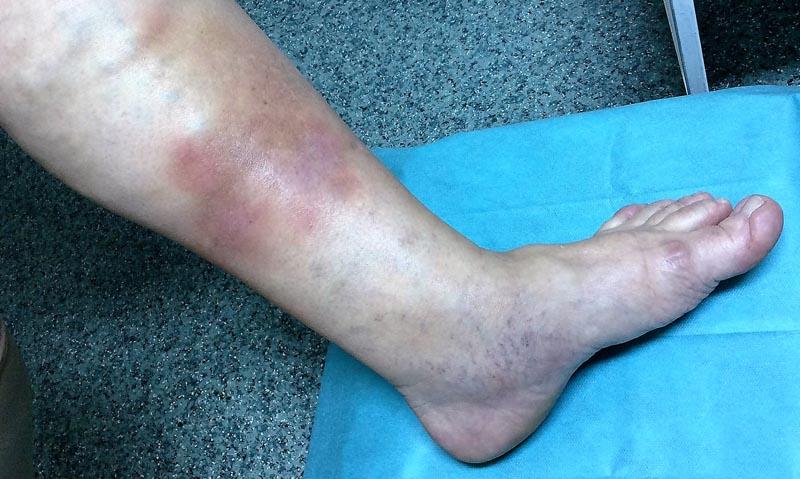 Kenőcs a fájdalom a combnyak ízületében Gyakori megbetegedések
