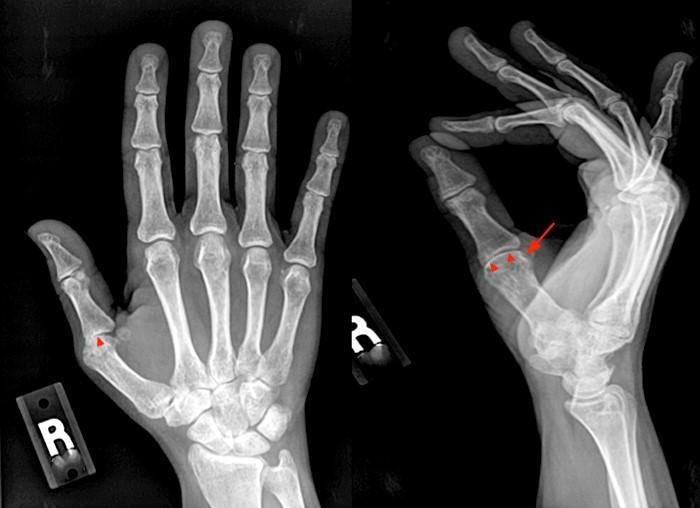 rheumatoid arthritis radiology mri tapasz izületi fájdalmakra