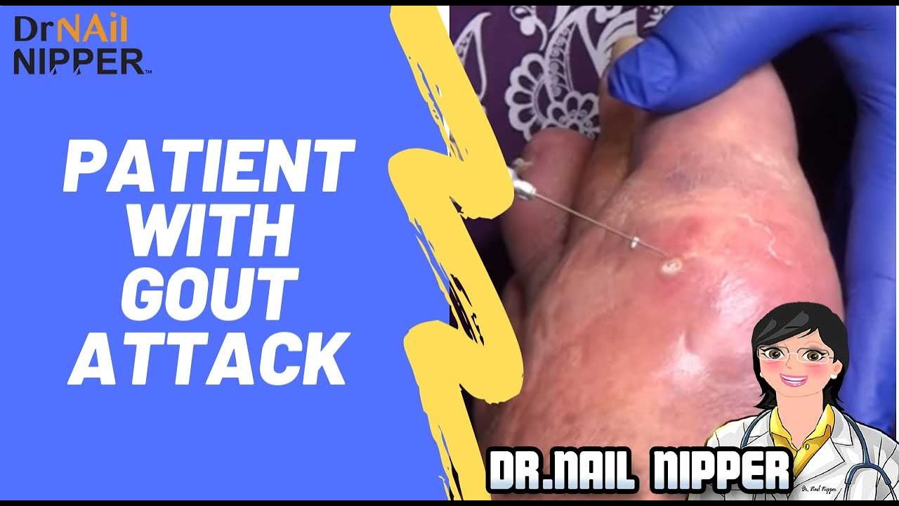 csípőfájás, hajlítás csukló helyreállítása a kar törése után