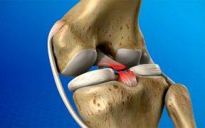 fájdalom a száj nyitásában az ízületben ízületi fájdalom felnőtteknél