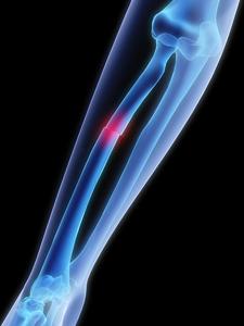 csípőtörés kezelésének ideje csípőízület tünetek kezelése