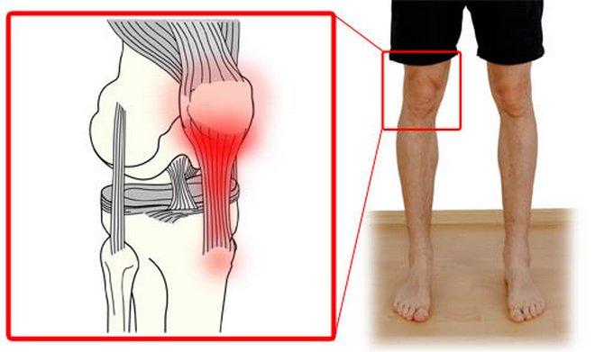 hogyan lehet gyorsan enyhíteni a térdízületek fájdalmait ütközéses ízületi gyulladás