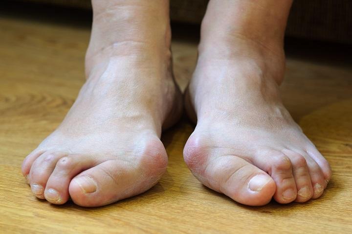 hogyan kezeljük a láb pangásos ízületét)