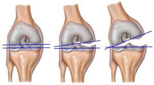 térd endoproteézis gyulladás)