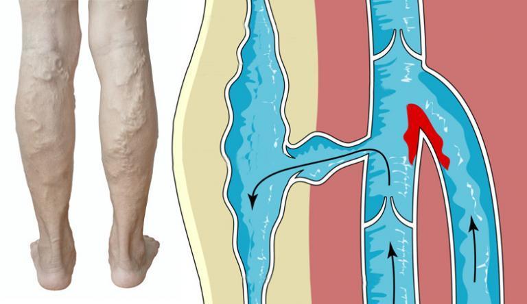 hogyan fejleszteni a térdét egy sérülés után osztály után fáj a könyökízület