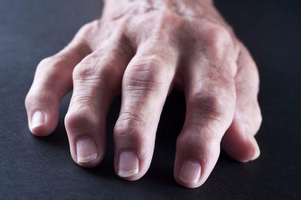 hogyan lehet eltávolítani a duzzanatot a kéz ízületeiben)