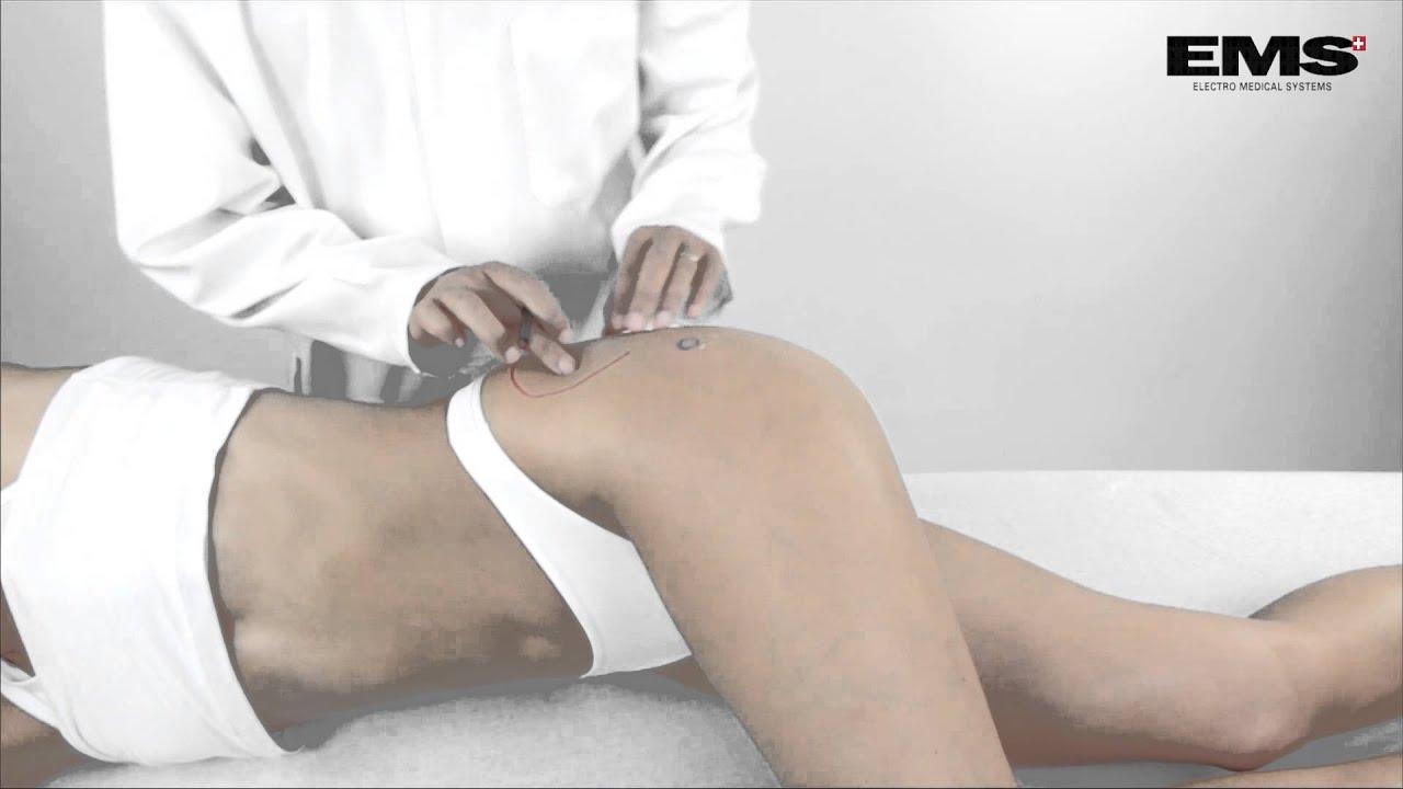 artróziskezelés berdyanskban kötőszövet-betegség szűrővizsgálata 000723