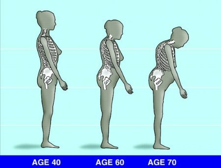 az átszúrja a fájó ízületeket térd ízületi gyulladás esetén az ízületek megváltoznak vagy sem