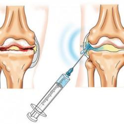 trentalis térd artrózisával térdízületi kezelés exudatív szinovitisz