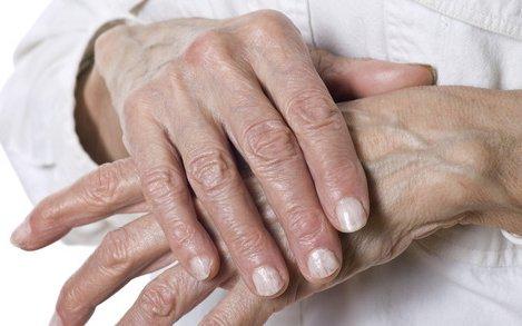 a kenőcső ujjai ízületeinek ízületi gyulladása
