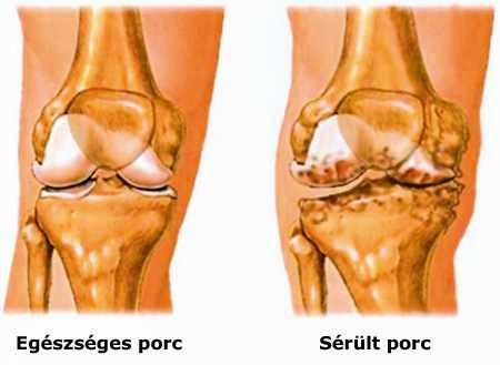 a térd artritiszének kezelésére szolgáló módszer)