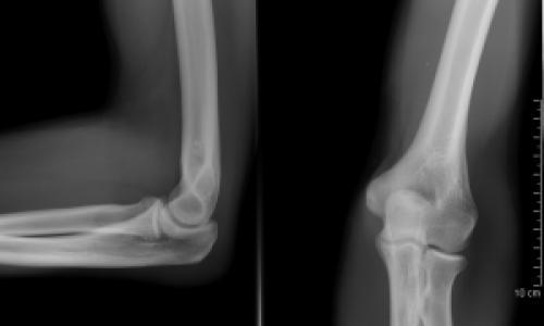 reumatikus fájdalom tünetei közös kezelés kórházban