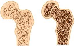 a leghatékonyabb gyógyszer az ágyéki csontritkulás kezelésére hogyan gyógyítható a vállízületi gyulladás
