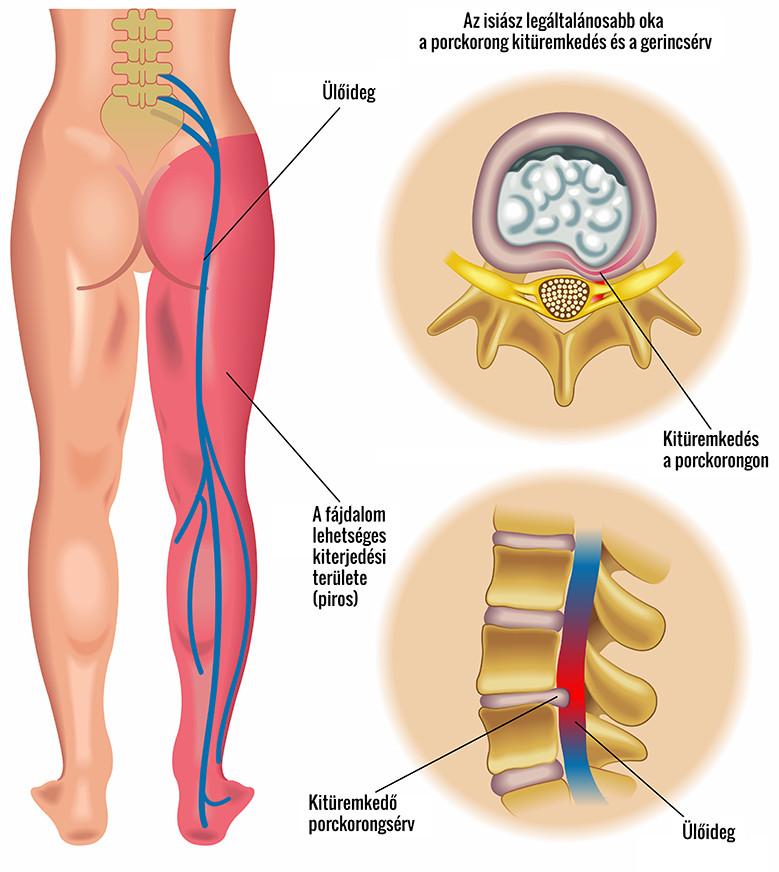 a térd átmeneti ízületi gyulladása