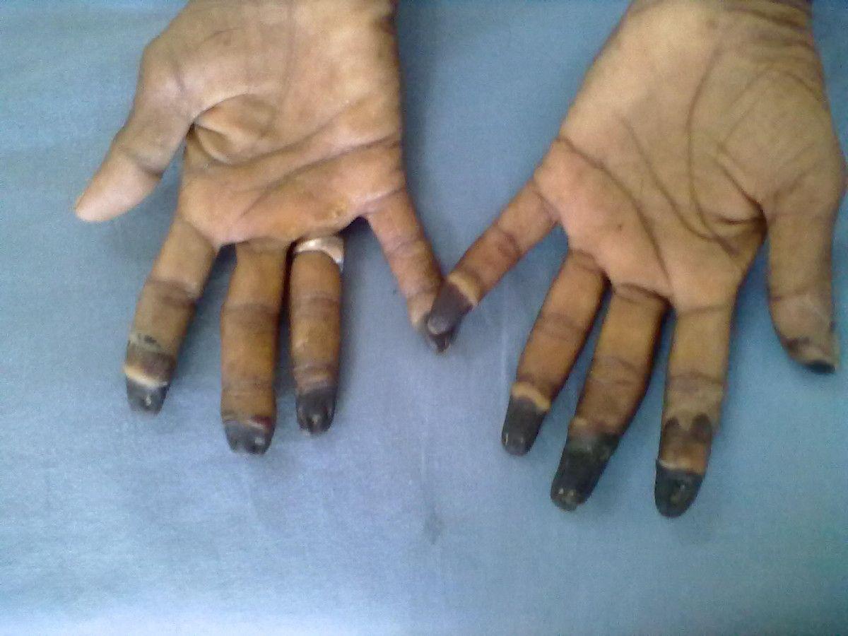a kézízületek duzzanatának kezelése
