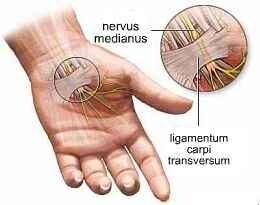 fájdalom a kéz csuklójában
