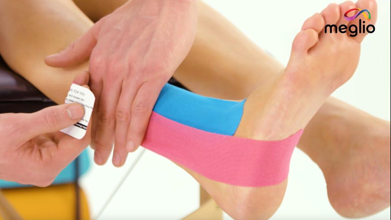 ujjízület sprain kezelés