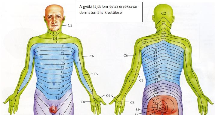 fájdalom a könyökízületben a gerinc miatt