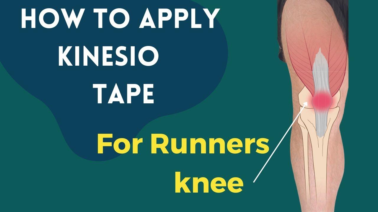 kinesio szalag térdízületnél artrózis esetén