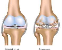 a térd doa-ját 2 fokkal kell kezelni osteoarthritis kezelésére szolgáló eszközök