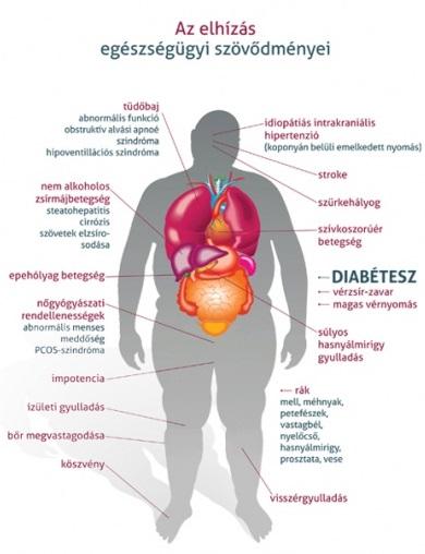 túlsúly és ízületi betegségek iliosakrális ízületi ízületi kezelés