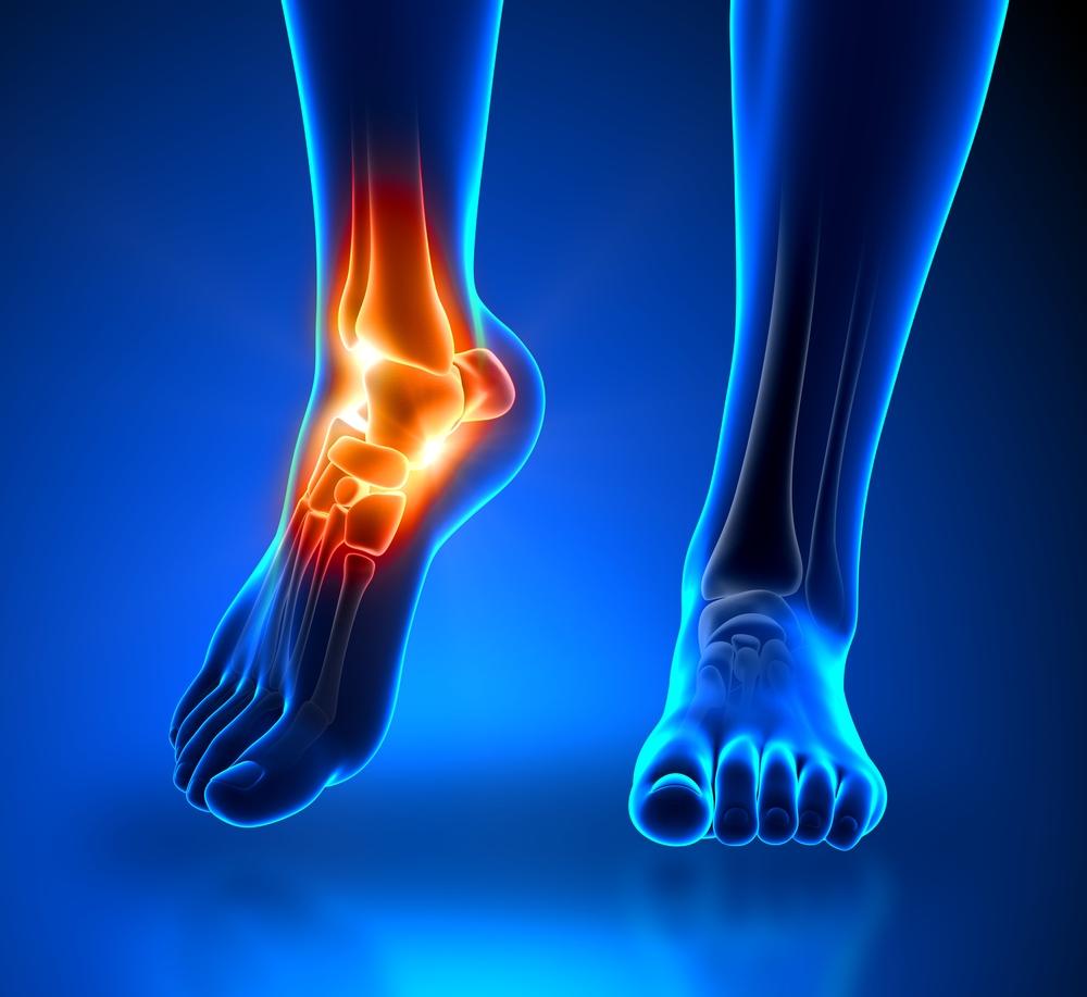 Hogyan kezelhető a gyulladt Achilles-ín? - HáziPatika