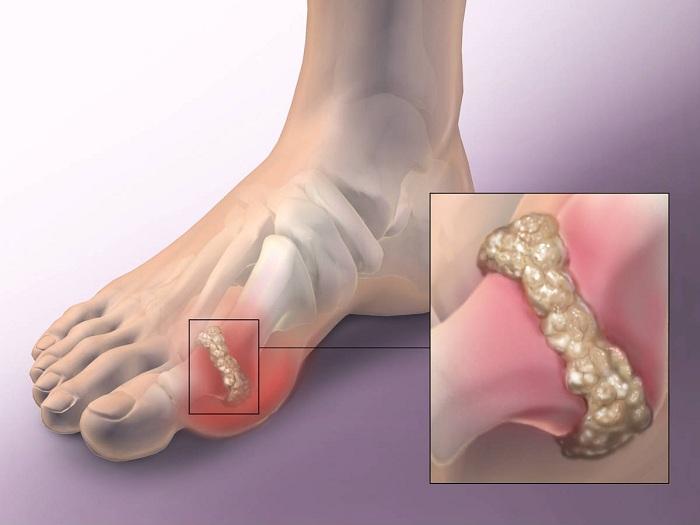 láb- és ízületi betegség
