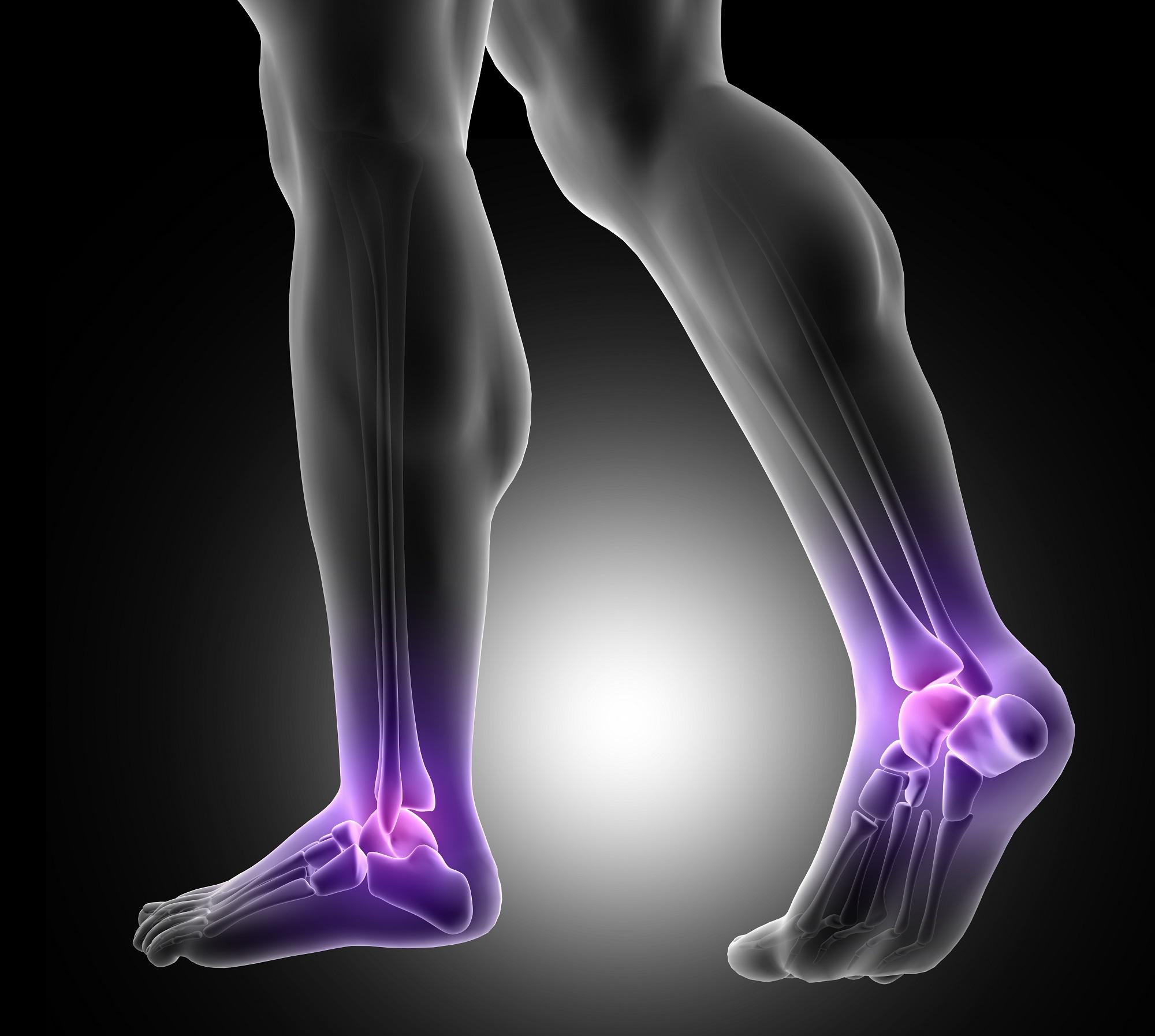 Receptek kenőcsök a fájdalom a lábak ízületeiben, Az arthrózis előfordulása