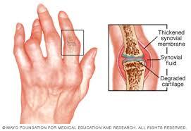 ízületi betegség és máj a csípőízület deformáló artrózisának stádiuma