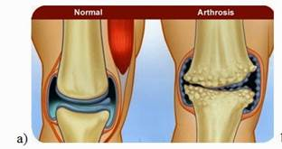 térd ízületi gyulladás 2-3 fok nyirokcsomók gyulladása és ízületi fájdalmak