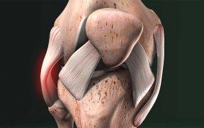 röplabda térd sérülések a térd rándulását kezeljük