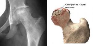 az alsó hátfájás csípőt ad állandó fájó ízületi fájdalom